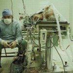 doktor kalp ameliyatı sonrası